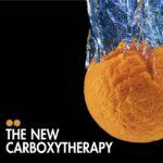Karboksiterapia e re